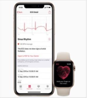 Apple Watch ECG App